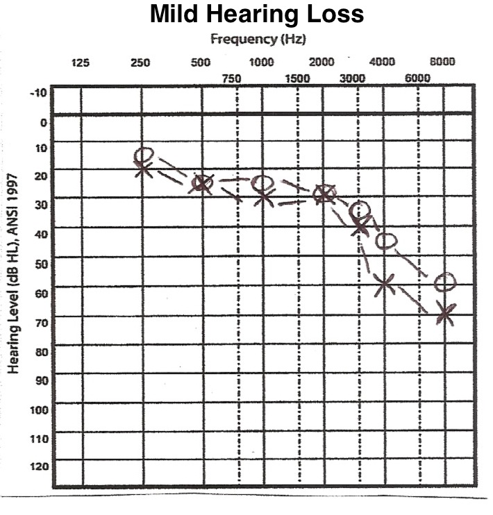 Mild to moderate hearing loss in infants symptoms